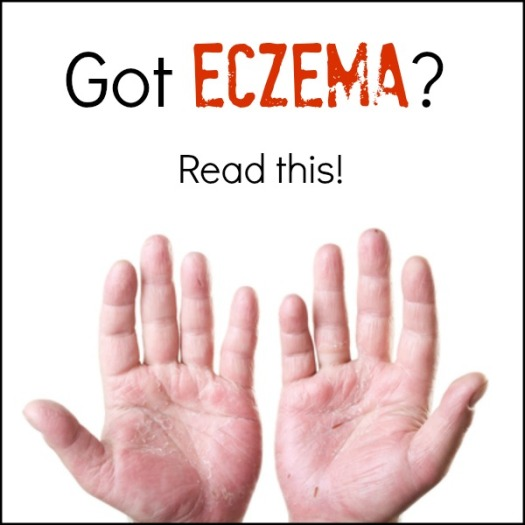 How to Use Cortisone to Treat Eczema? Read on to find out how to use cortisone to treat eczema effectively and safely.