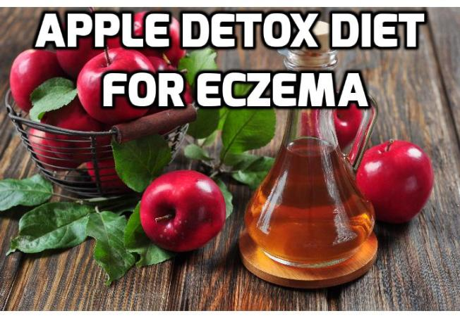 Apple Detox for Preventing Future Eczema Outbreaks - Do you know that apple detox can increase the effectiveness of your eczema treatment? Read on to find out how you can start this apple detox program to prevent future eczema breakouts.