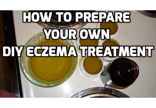 DIY Eczema Treatment for Soothing Itchy and Irritated Skin - Read on to find out how you can prepare your own DIY eczema treatment to soothe itchy and irritated skin.