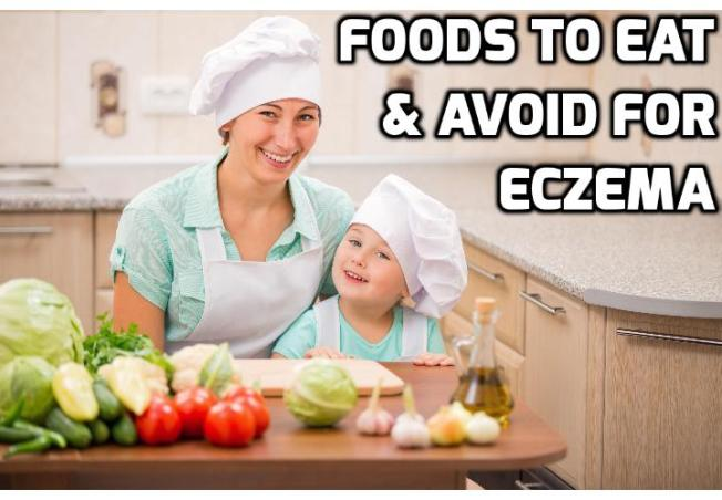 What You Need to Know About Eczema and Food? As the saying goes, you are what you eat. So, it won't be a surprise that what you can eat can trigger or keep eczema away. In this post, I am going to discuss about the relationship between eczema and food.