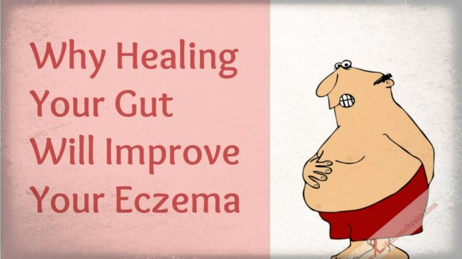 Eczema Treatment by way of Healing Leaky Gut - For people dealing with leaky gut and seeking eczema treatment, it is best to choose the right type of food. Read on to find out more.