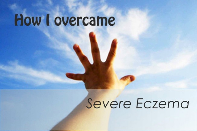 How to Treat Severe Eczema? If you have severe eczema, don't lose hope. With a solid eczema treatment program, which involves a multifaceted approach that includes medical treatments and lifestyle modifications, you can find relief and restore your skin's texture and health.