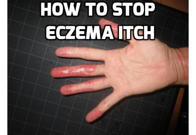 How to Relieve Eczema Itch? Eczema is one condition that is painful, uncomfortable and yes, even debilitating. For many people the search for an effective, safe and inexpensive way to relieve eczema itch is a constant struggle. Here are some home remedies for you to stop eczema itching.