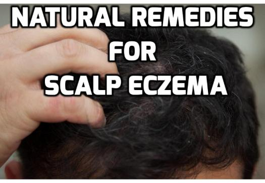 Scalp Eczema Treatment – Safe Remedies for Pesky Flakes and Itchiness - Scalp eczema is embarrassing, extremely uncomfortable and frustrating. If left untreated, eczema on the scalp can lead to stunted hair growth and hair loss. For this very reason, the timely administration of scalp eczema treatment is highly recommended to keep the condition in tight check. Read on to find out more.