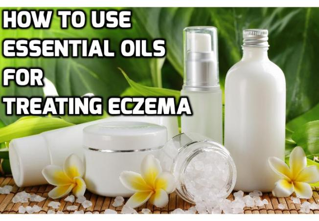 The Benefits of Essential Oils for Eczema - There are a number of essential oils for eczema that can effectively alleviate the itchiness, inflammation and pain that is associated with eczema. Read on to find out more.