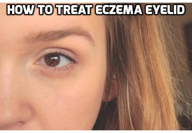 How to Prevent and Treat Eczema on Eyelid? People who are looking for ways to treat eczema on eyelid usually suffer from swollen, wrinkled, itching or burning eyelids. And given the fact that it is near the eye area, extra care should be taken to avoid complications. Read on to find out more.