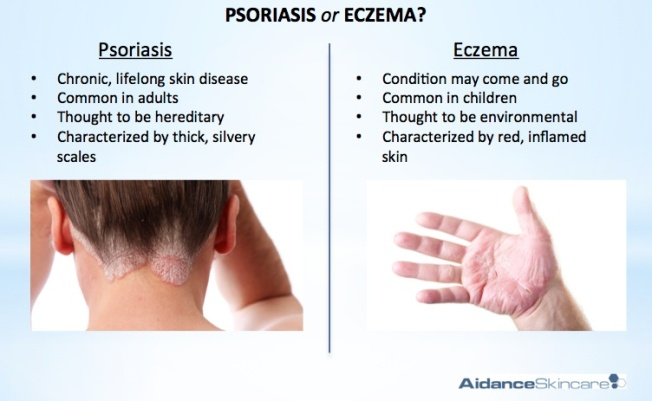 Eczema and Psoriasis – What's the Difference? Over the years, eczema and psoriasis have been referred interchangeably, which have somehow blurred the difference. In order to come up with an effective treatment, you need to know if you are suffering from eczema or psoriasis. Read on to understand the differences between eczema and psoriasis.