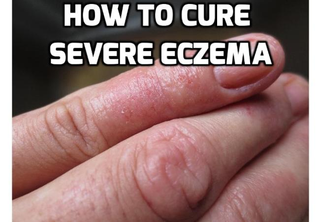 How to Treat Severe Eczema? If you have severe eczema, don't lose hope. With a solid eczema treatment program, which involves a multifaceted approach that includes medical treatments and lifestyle modifications, you can find relief and restore your skin's texture and health. Read on to find out more.