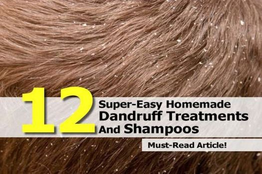 12 Homemade Dandruff Treatments & Shampoos - Before reading on about treating your dandruff at home, make sure you actually have dandruff. If you believe you have dandruff, than read on. Here are 12 homemade dandruff treatments to help you kick the crusties.