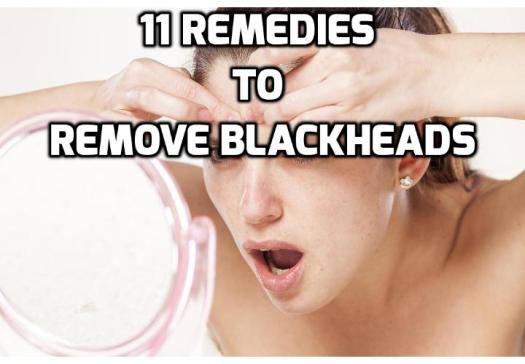 11 Simple Remedies to Get Rid of Blackheads - Common and annoying, blackheads occur when your pores become clogged with excess oil and dead skin cells. Read on to find out about the 11 simple remedies to get rid of blackheads naturally.