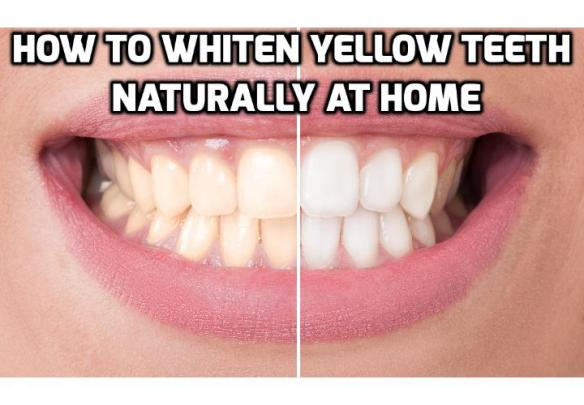 3 Teeth Whitening Tips To Whiten Yellow Teeth Naturally Anti