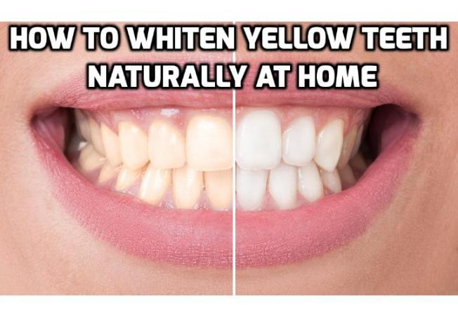3 Teeth Whitening Tips to Whiten Yellow Teeth Naturally - Whiter teeth (like thick, shiny hair) are something that many people in our cosmetically driven world desire today. Here are 3 teeth whitening tips you can use to whiten your yellow teeth naturally at home.
