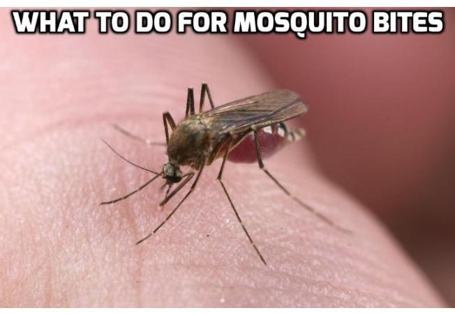 5 Home Remedies for Mosquito Bites Revealed Here - Ever get the feeling that you're getting singled out when you go camping? If you do, here are 5 home remedies for mosquito bites you can use.
