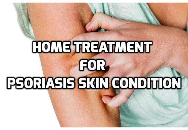 Which are really the Best Psoriasis Home Remedies? Psoriasis home remedies are the lowest cost treatments for dealing with psoriasis. More often than not, they are all-natural cures and won't harm you with harsh side-effects. Read on here to find out more.