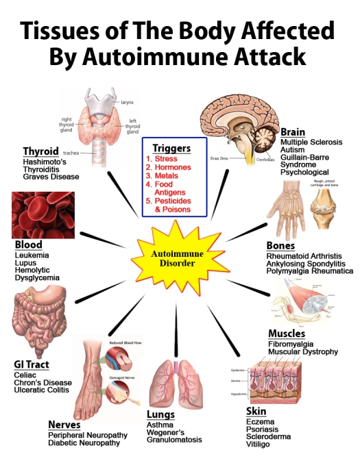 How Best to Really Avoid Autoimmune Diseases Immediately? How do Autoimmune Diseases Happen and How to Avoid Autoimmune Diseases? Read on to find out more.