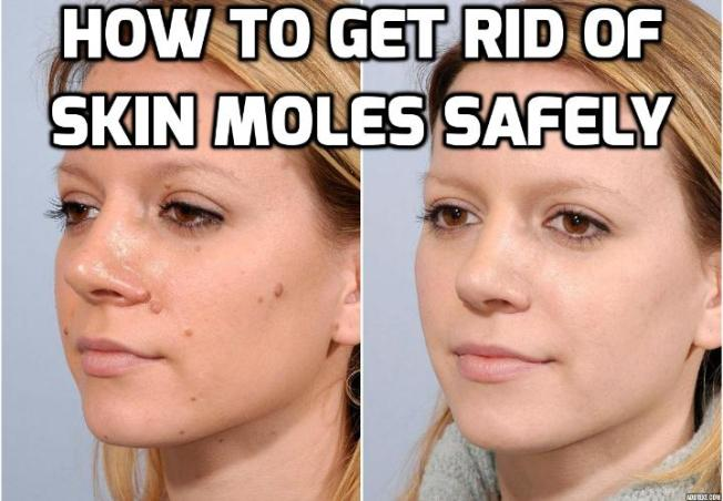 How Best to Really Remove Skin Moles Absolutely? Skin moles are skin growths that may have a variety of colors, shapes and sizes. Although some may be regarded as beauty marks, many others are quite unsightly which is why many people are looking for ways to remove skin moles.