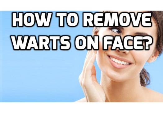 Are Face Warts Really Hurting Your Self-Esteem Absolutely? Face warts are more common in children and adolescents, but other older individuals may also have them. Face warts are a viral infection caused by the human papilloma virus (HPV). They are mainly of two types, namely flat warts and common warts. Read on here for more ideas on how to treat face warts.