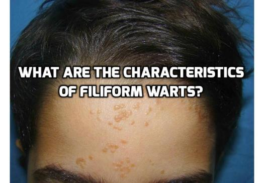 Revealing Here 10 Important Facts about Filiform Warts - Filiform warts generally occur on visible areas of the individual, they may create some discomforts relating to the aesthetic aspect. In view of this one may consider treatment. Read on here to find out more.